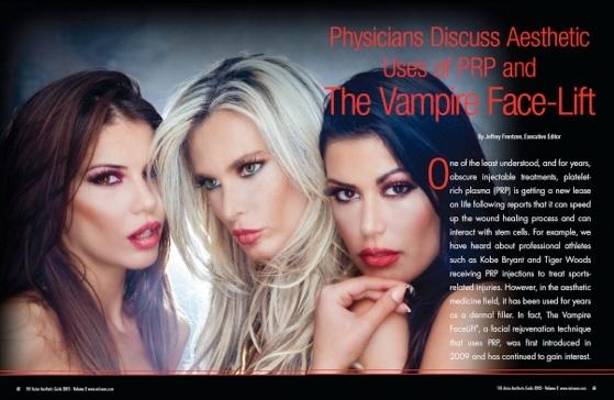 vampire_face_lift