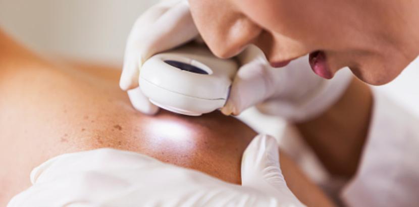 Die Empfindlichkeit der Haut, eine Hauptursache für viele Hautrötungen