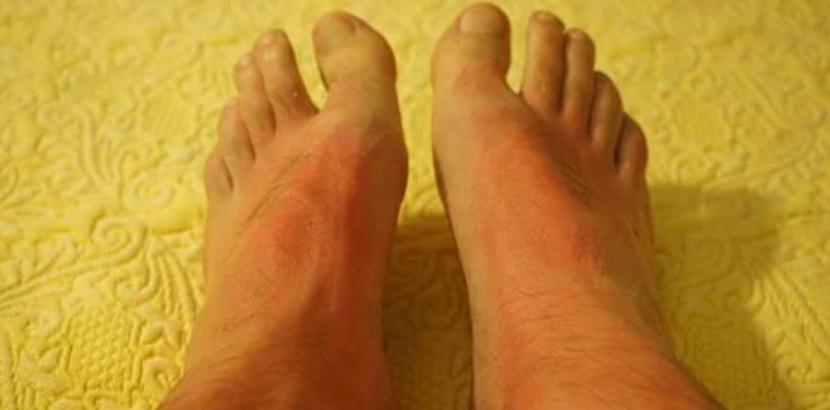 Weitere Faktoren, die eine Hautrötung verursachen können