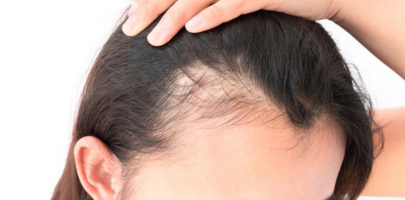 Wie die Eigenblutbehandlung (PRP) gegen Haarausfall hilft