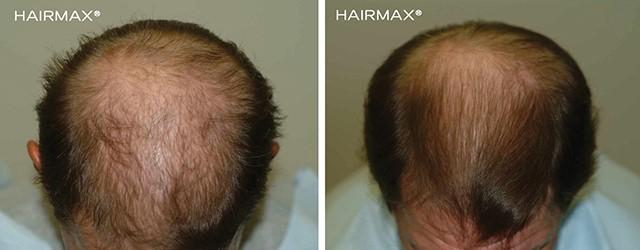 hairmax beispiel