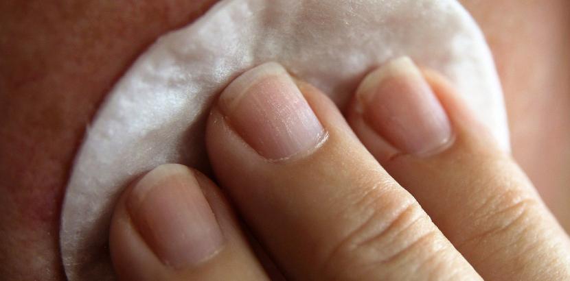 Aknenarben effektiv und nachhaltig behandeln