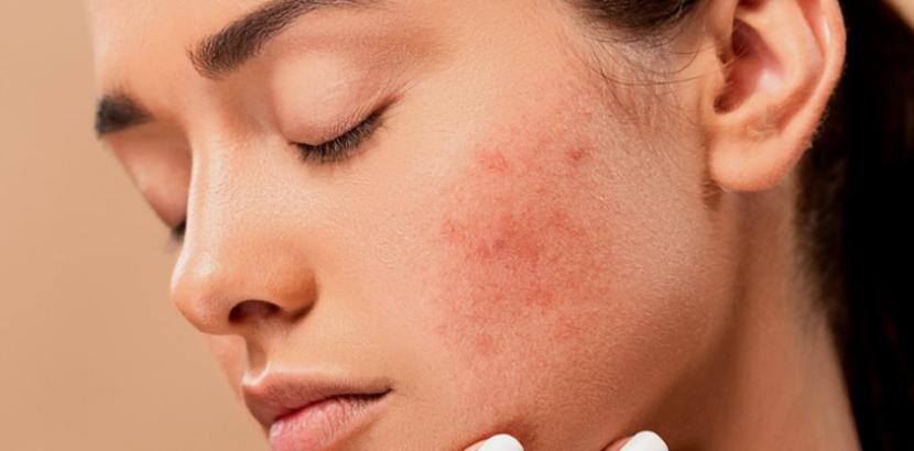 Behandlungsmethoden für Aknenarben