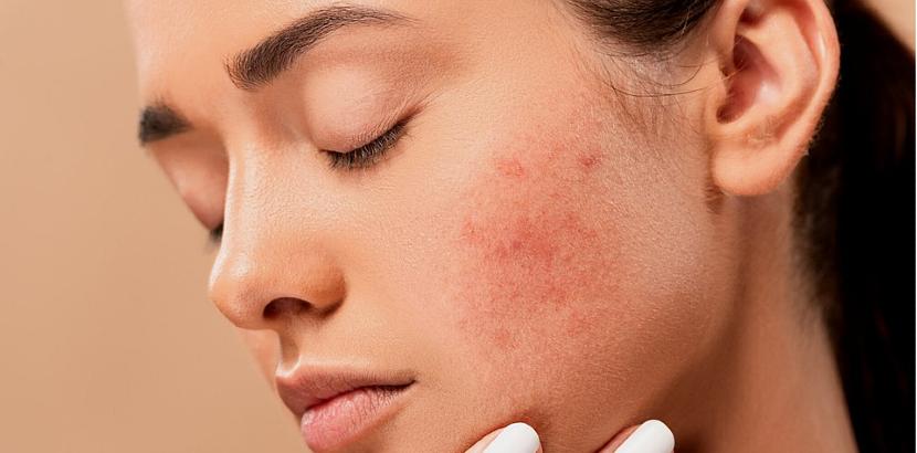 Akne behandeln: Diese Therapiemöglichkeiten bieten wir an