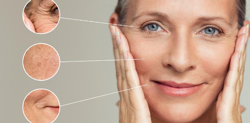 Welche Falten können wir mit Botox behandeln?